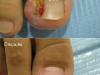 cirugia01